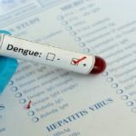 How to Know about Dengue Virus Research in the Singapore Region